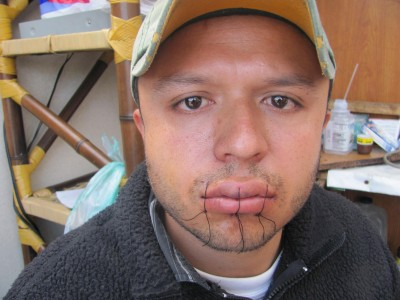 Stiches Carlos